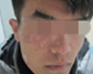 白癜风最佳治疗方法-武汉环亚白癜风医院