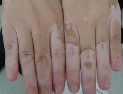 武汉女性手上长白斑是什么症状