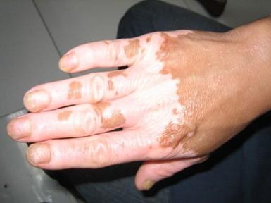 手指上有白斑咋办